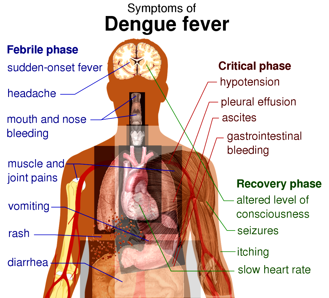 What Is the Symptoms of Dengue Fever